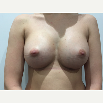 18-24 year old woman treated with Breast Augmentation after 3697442