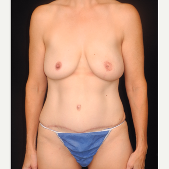 45-54 year old woman treated with DIEP flap breast reconstruction after 3748103