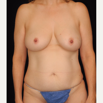 45-54 year old woman treated with DIEP flap breast reconstruction before 3748103