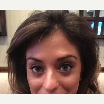 25-34 year old woman treated with Botox after 3822597