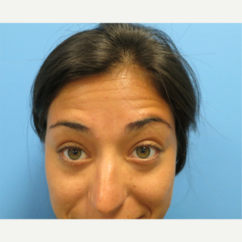 25-34 year old woman treated with Botox before 3822597