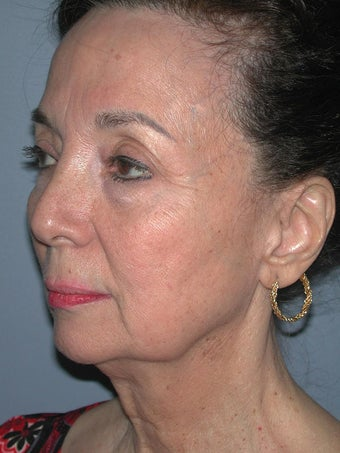 Chin Surgery on 65-year-old 841898