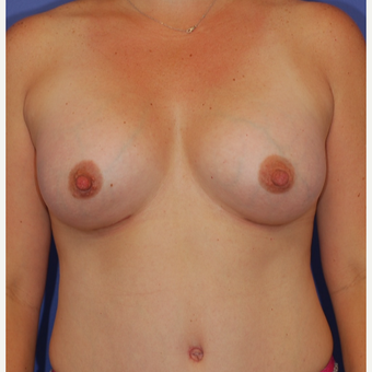 25-34 year old woman treated with Breast Augmentation after 3619062
