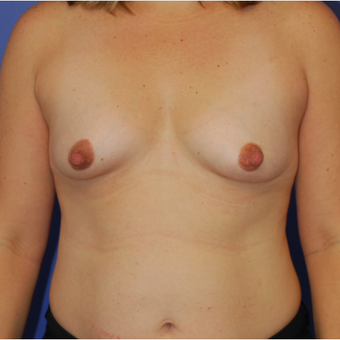 25-34 year old woman treated with Breast Augmentation before 3619062