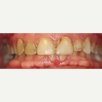 25-34 year old woman treated with Porcelain Veneers before 3087510