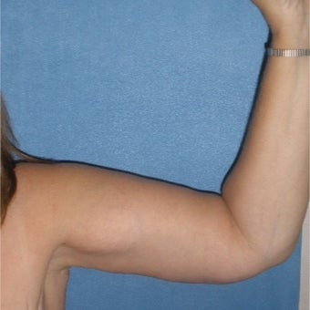 45-54 year old woman treated with Arm Lift after 1734957