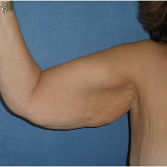 45-54 year old woman treated with Arm Lift 1734957