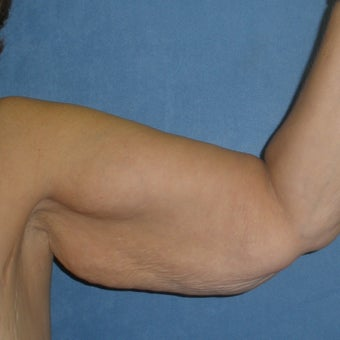 45-54 year old woman treated with Arm Lift before 1734957