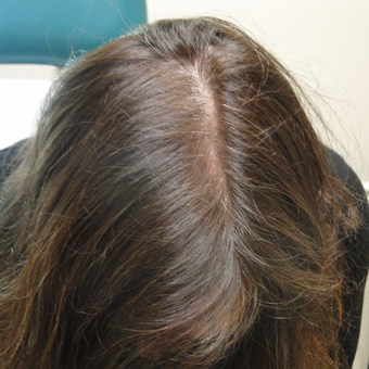 35-44 year old woman treated with PRP for Hair Loss after 2732183