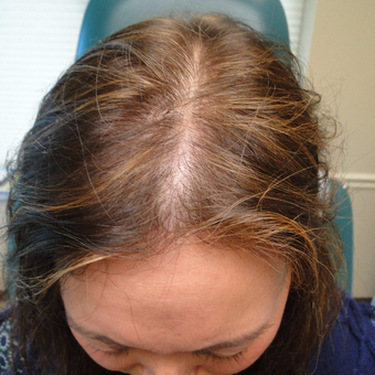 35-44 year old woman treated with PRP for Hair Loss before 2732183