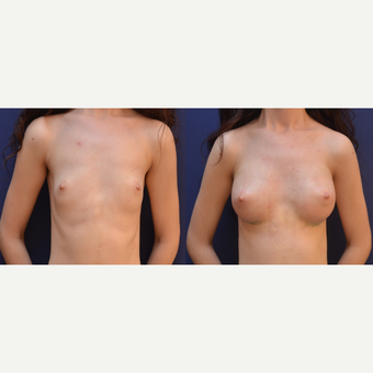 18-24 year old woman treated with Breast Augmentation before 3238838