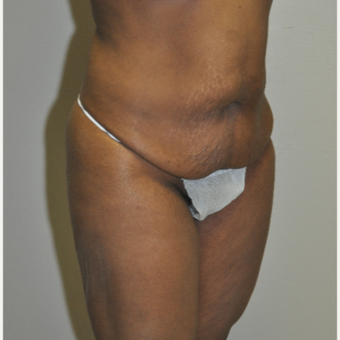 45-54 year old woman treated with Tummy Tuck before 3500931