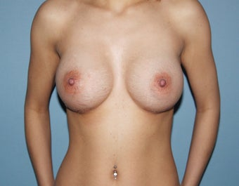 Breast Implants after 475902