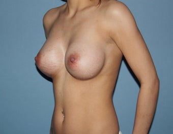 Breast Implants 475902