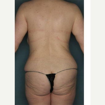 25-34 year old woman treated with Body Lift before 3421141