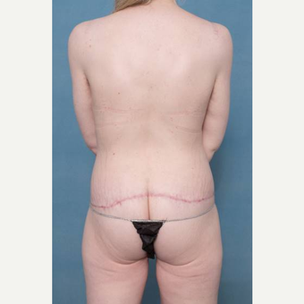 25-34 year old woman treated with Body Lift after 3421141