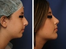 Teen Rhinoplasty and chin implant before 130773