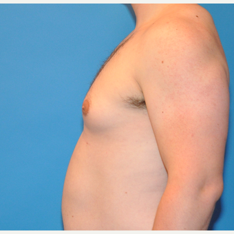 26 year old male treated with Male Breast Reduction before 3705450