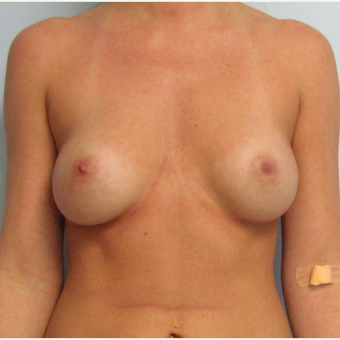 Breast Implant Revision - Larger Silicone Gel Breast Implants before 3030424