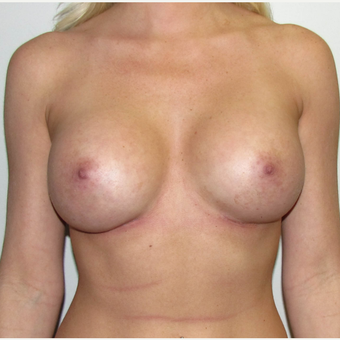 Breast Implant Revision - Larger Silicone Gel Breast Implants after 3030424
