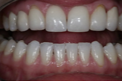 45-54 year old woman treated with Dental Implants