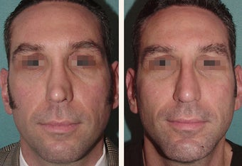 Male Patient, Early 50's Treated for Unnatural Looking Nose