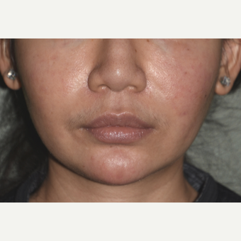 25-34 year old woman treated with Custom Jawline Implant before 3600649