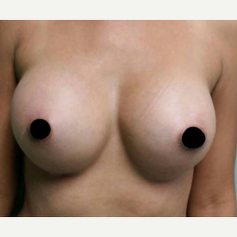 25-34 year old woman treated with Breast Augmentation after 3458547