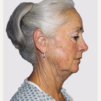 65-74 year old woman treated with Facelift before 2067053