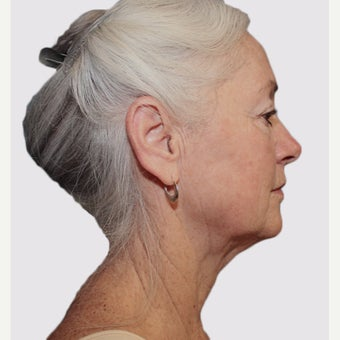 65-74 year old woman treated with Facelift after 2067053
