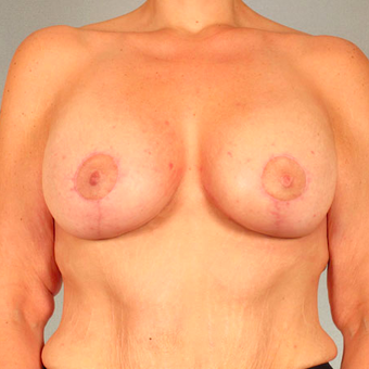 Breast Lift with Implants after 3032979
