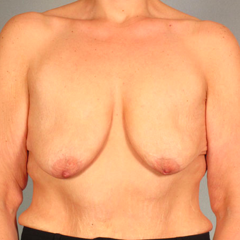 Breast Lift with Implants before 3032979
