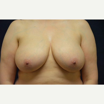 45-54 year old woman treated with Breast Lift before 3467209