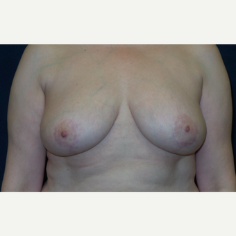 45-54 year old woman treated with Breast Lift after 3467209