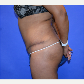 45-54 year old woman treated with Tummy Tuck after 3580061