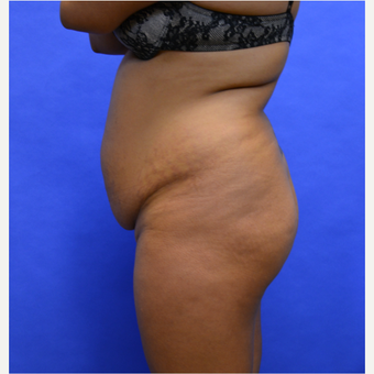 45-54 year old woman treated with Tummy Tuck before 3580061