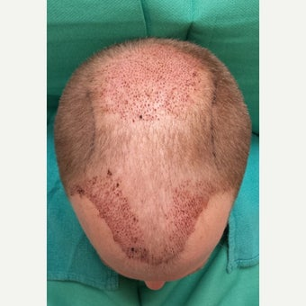 35-44 year old man treated with NeoGraft 1717012