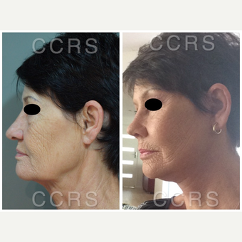 Complete facial rejuvenation of a 61 year old female before 3031267