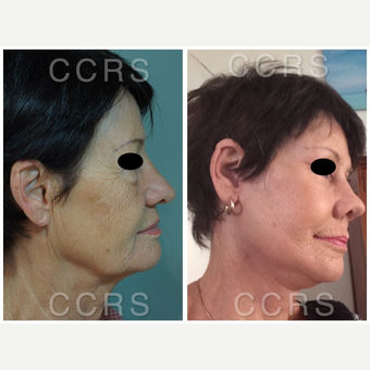 Complete facial rejuvenation of a 61 year old female after 3031267