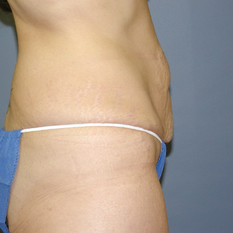 47 year old woman treated with Tummy Tuck before 3042767