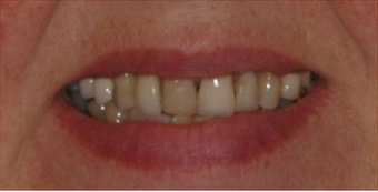 Porcelain Veneers and Dental Crowns before 529035