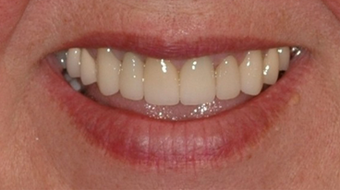 Porcelain Veneers and Dental Crowns after 529035