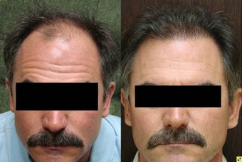 NeoGraft hair transplant before 545298