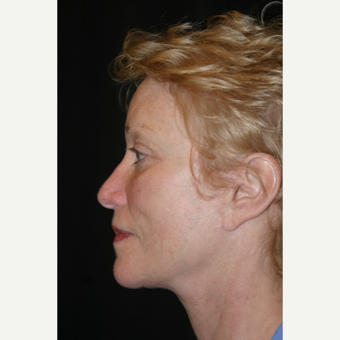 55-64 year old woman treated with Facelift after 3648637