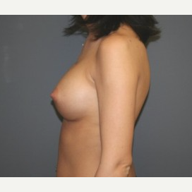 25-34 year old woman treated with Breast Implants after 3303958