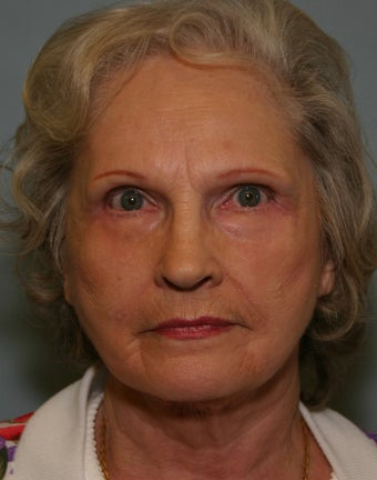 73 y/o Primary Facelift with Upper & Lower Blepharoplasty & Browlift 928161