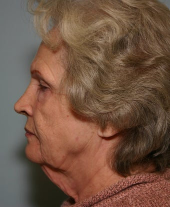 73 y/o Primary Facelift with Upper & Lower Blepharoplasty & Browlift before 928161