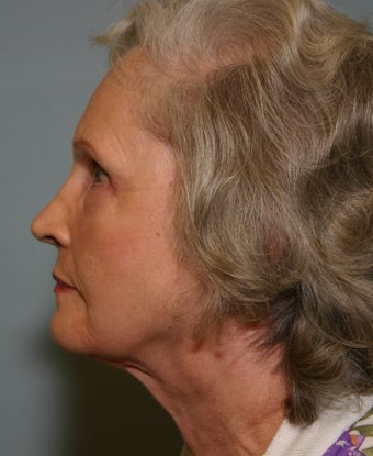 73 y/o Primary Facelift with Upper & Lower Blepharoplasty & Browlift after 928161
