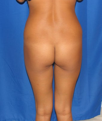 Buttock Implants before 906337