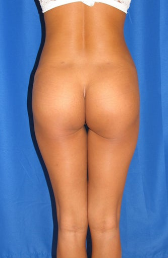 Buttock Implants after 906337